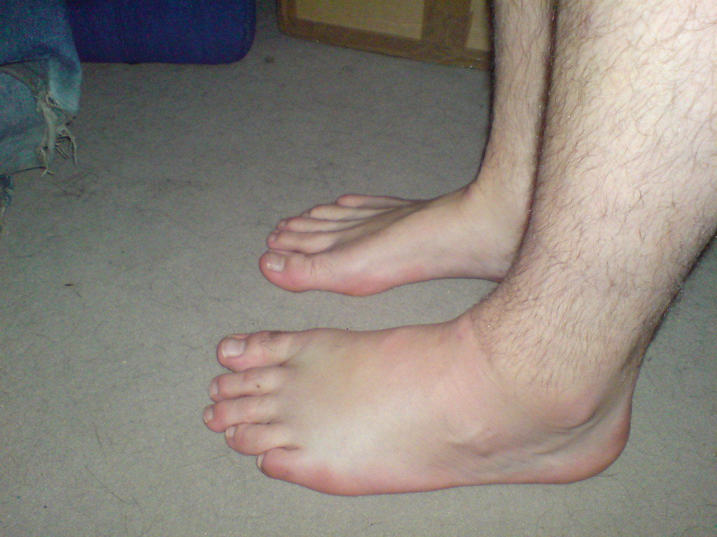 Image of mans swollen feet
