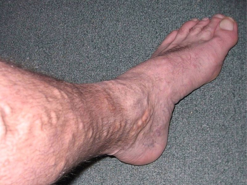 Image on a mans calf and foot with varicose veins